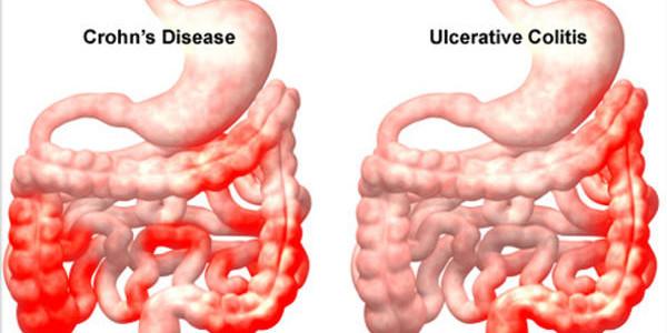 קרוהן, קוליטיס – מחלות מעי דלקתיות